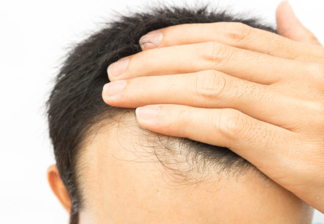 PRP Hair Loss Treatment in Colts Neck NJ